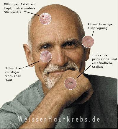Weisserhautkrebs De Wissenswertes Zu Fruhformen Des Weissen